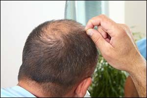 Causes of Hair Loss in Men