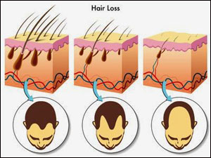Hair loss graphic