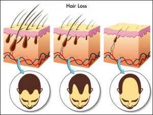 hair loss diagram