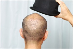 bald man with hat