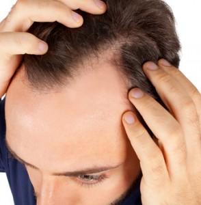 Man showing hair loss results