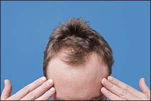 Hair Loss Treatments That Work
