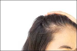 Hair Loss Solutions for Women