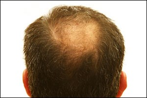 regrow-hair-laser-therapy
