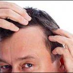 Greater Boston Area Hair Loss for Men