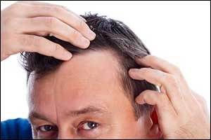 Greater Boston Area Hair Loss for Men