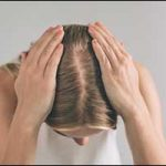 Greater Boston Hair Loss Women