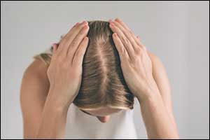 Greater Boston Hair Loss Women