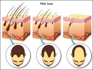 hair loss diagram