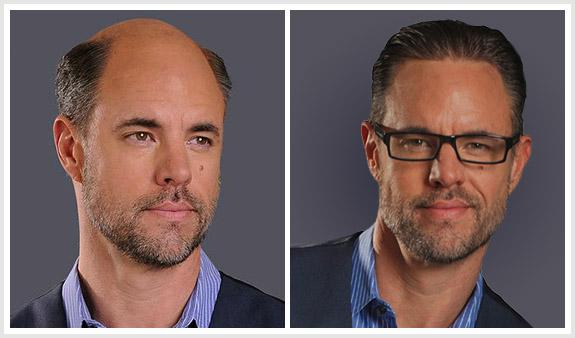 before-after-men-blue-vest