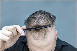 Male Pattern Baldness in New Bedford, MA