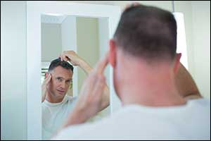 male pattern baldness solutions