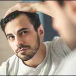 Man Losing Hair in Greater Boston Area