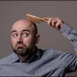 south coast hair loss men