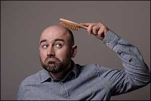 south coast hair loss men