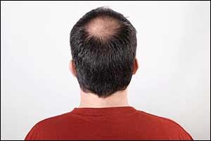 male pattern baldness boston area